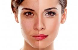 Как выбрать косметику для проблемной кожи?