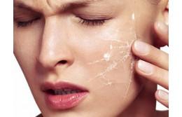 Как выбрать косметику для сухой кожи?